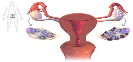 Polycystic Ovary Syndrome(PCOS)