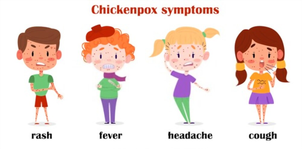 Symptoms of chickenpox in children