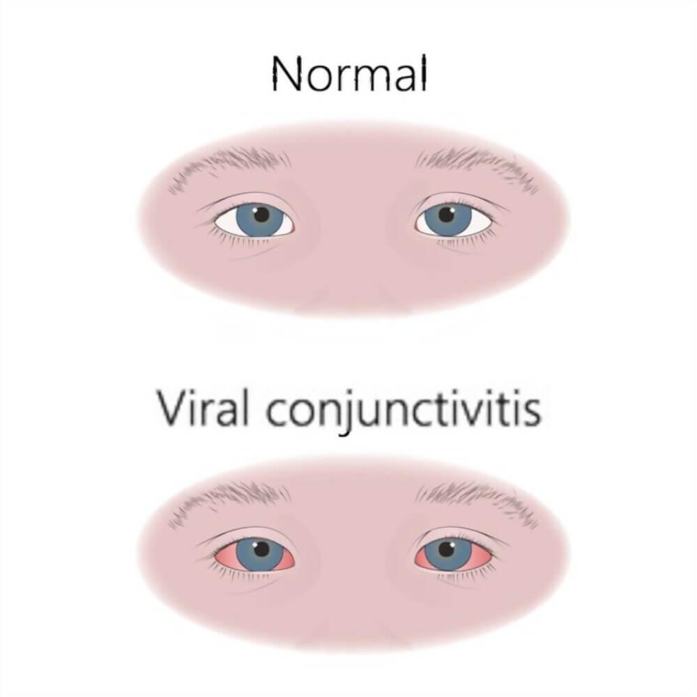 Viral Conjunctivitis