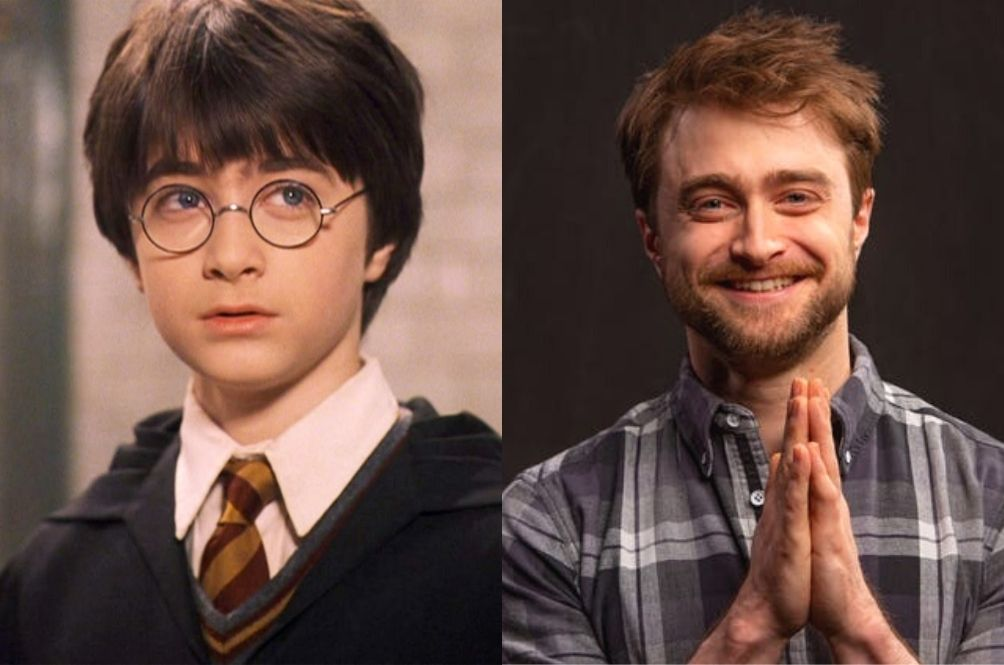 Daniel Radcliffe Learning Disability